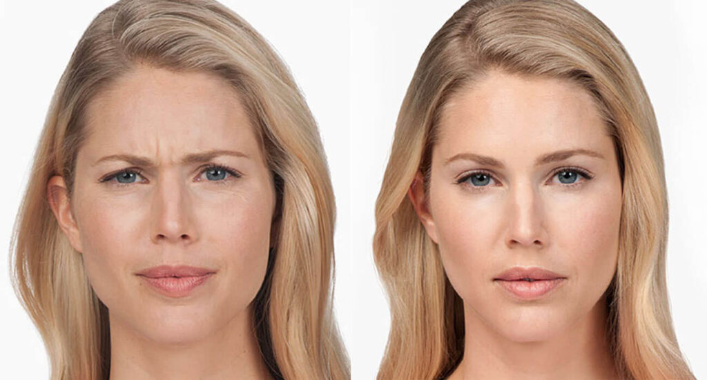 Botox for Forehead Lines: The Miracle Shortcut to Look Younger